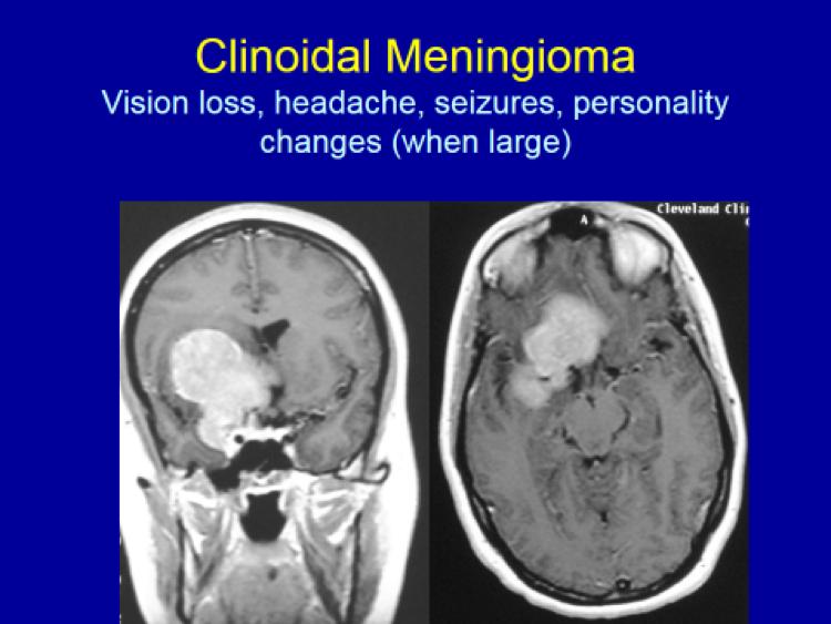 Clinoidal Meningioma