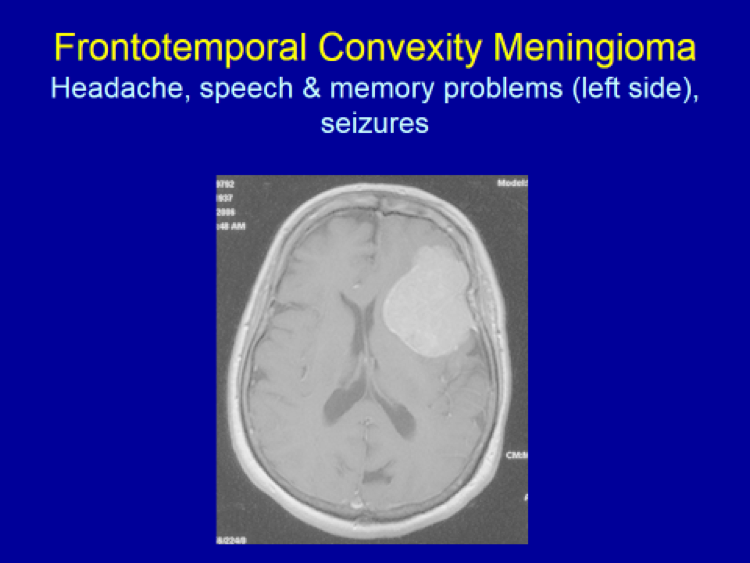 Frontotemporal Convexity Meningioma
