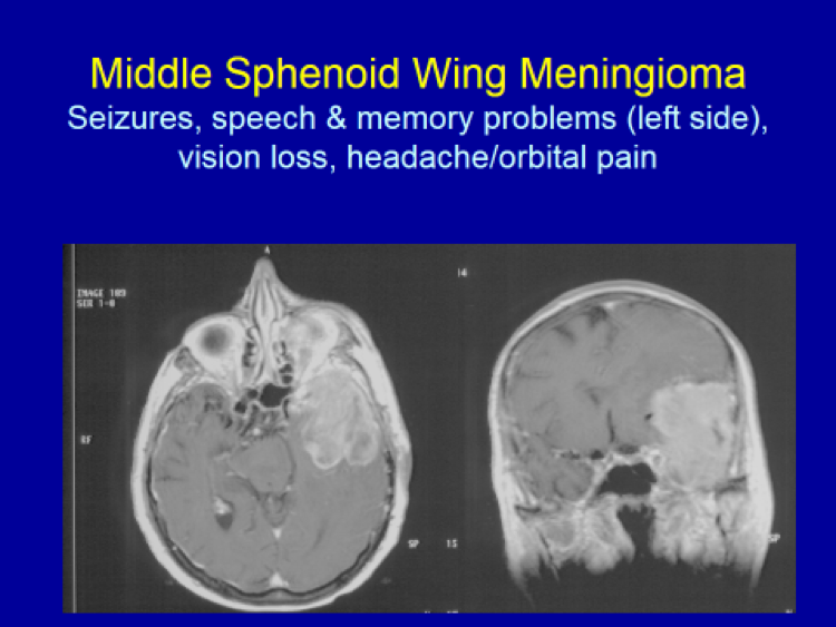 Middle Sphenoid Wing Meningioma