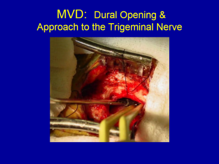 MVD Dural Opening and Approach to the Trigeminal Nerve