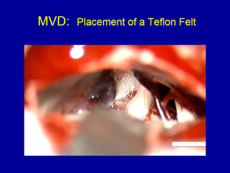 MVD Placement of a Teflon Felt