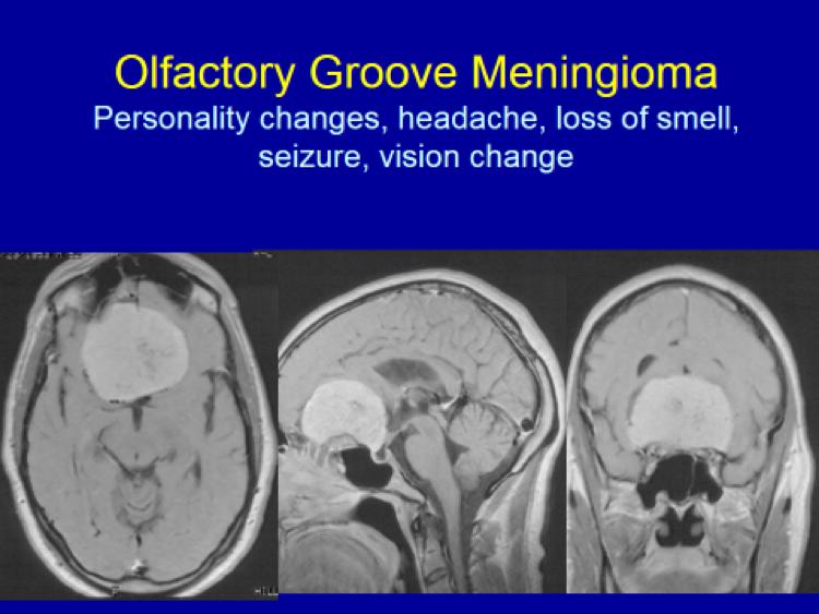 Olfactory Groove Meningioma