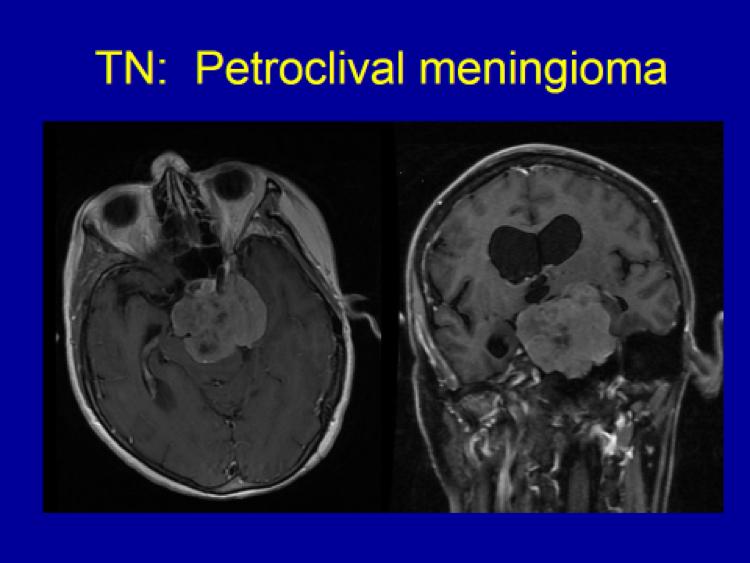 Petroclival Meningioma